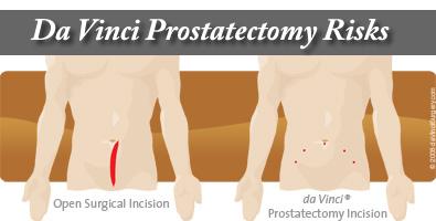 Da Vinci Robot Prostatectomy Risks